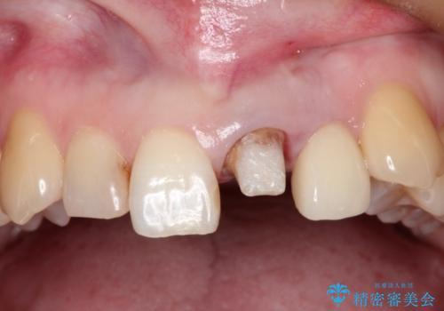 上の前歯に違和感がある 根管治療からの再治療の治療中