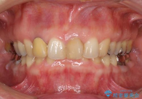 前歯の裏が腫れている 清潔な当院に転院希望の治療前