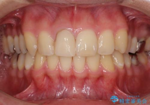 仮歯がすぐ外れる 前歯を治したい 転院希望の治療前