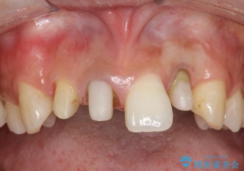 前歯のセラミック修復 根管治療・歯周外科も行うの治療中