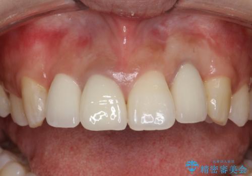 前歯のセラミック修復 根管治療・歯周外科も行うの治療後