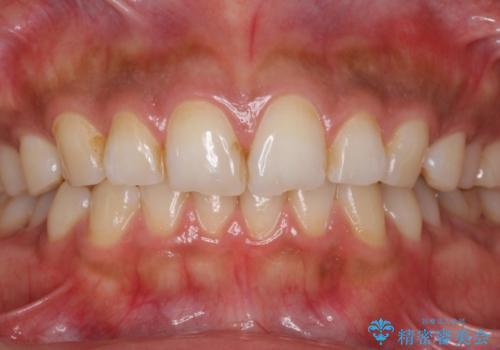 結婚式前にPMTCとホワイトニングで歯を白くの症例 治療前