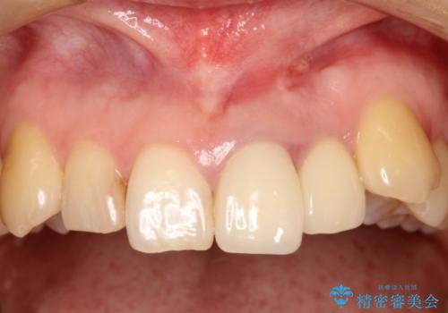 上の前歯に違和感がある 根管治療からの再治療の治療前