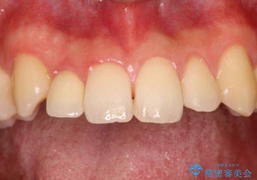 矮小歯のオールセラミッククラウンによる審美的改善の治療後