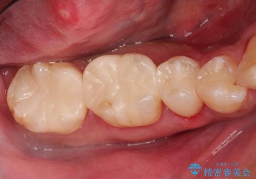 歯周外科を併用したセラミックインレー修復の治療後