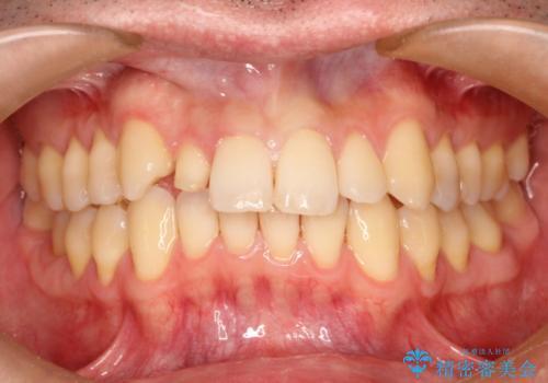 矮小歯のオールセラミッククラウンによる審美的改善の治療中