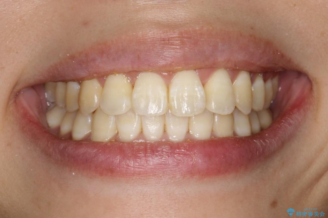 インビザラインによるガタつきの治療 クロスバイトの改善の治療後(顔貌)