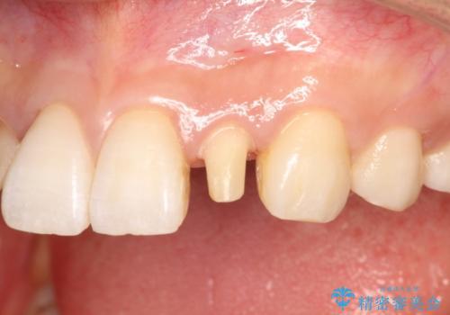 レジン充填をやめてセラミック治療へ(矮小歯)の治療後