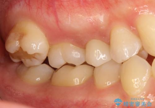 神経に達する深い虫歯 根管治療とかぶせもの治療の治療後