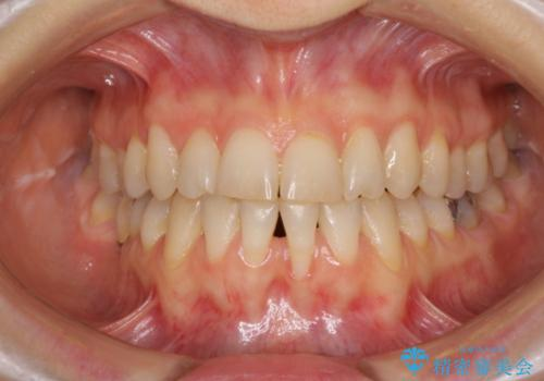 前歯の歯肉退縮 歯肉移植による根面被覆の治療前