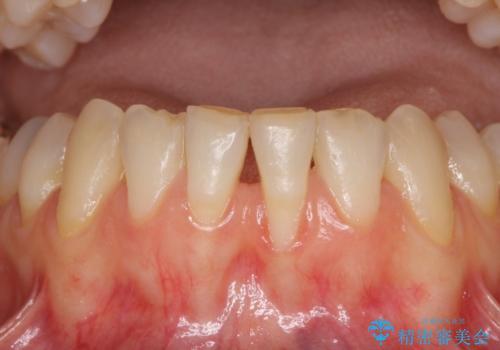 前歯の歯肉退縮 歯肉移植による根面被覆の症例 治療前