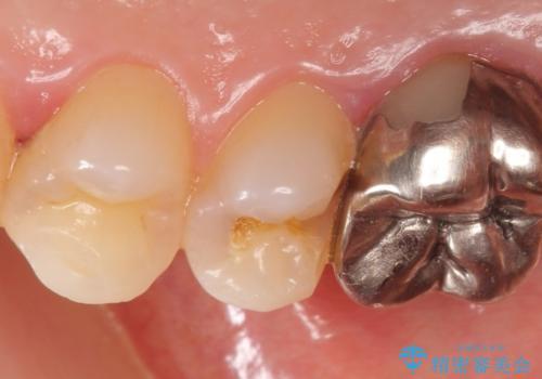 セラミックインレー 被せ物が取れた歯の治療の治療前