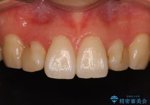 レジン充填をやめてセラミック治療へ(矮小歯)の治療前