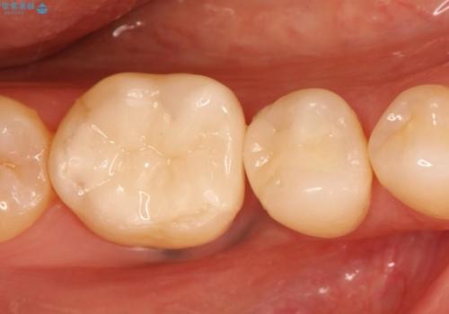 銀歯が取れた。隣の歯も一緒に白いセラミックインレーへ。の治療後