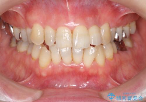 前歯の色変化 セラミッククラウンによる審美性の改善の治療後