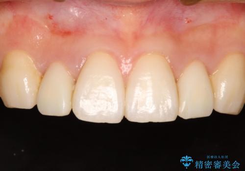 レジン充填をやめてセラミック治療へ(矮小歯)の治療中