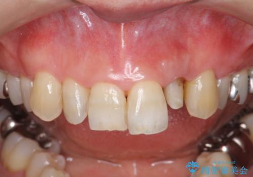 前歯の色変化 セラミッククラウンによる審美性の改善の治療中