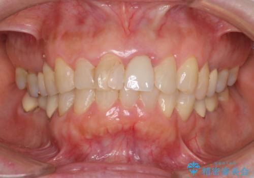 歯茎の腫れた前歯を綺麗にしたい 部分矯正を用いたセラミック治療の治療前