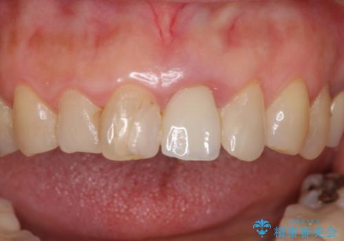 歯茎の腫れた前歯を綺麗にしたい <span class=