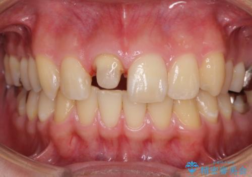 仮歯がすぐ外れる 前歯を治したい 転院希望の治療中