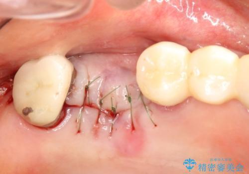 上の奥歯が保存不可能に→サイナスソケットリフトで薄い骨にも対応の治療中