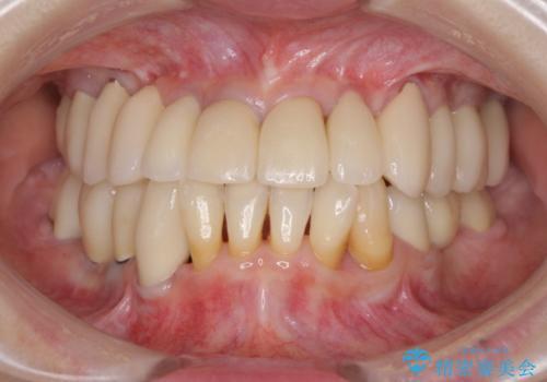 総合歯科治療の症例 治療後