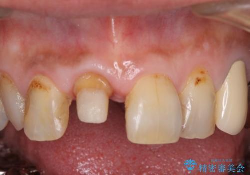 前歯がとれた 残った小さい歯を引っ張り出して保存するの治療中