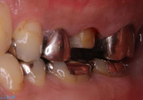 根管治療からやり直し 奥歯の被せ物までの治療中