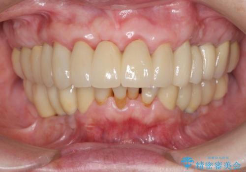 セラミック下に再発した虫歯治療の治療後