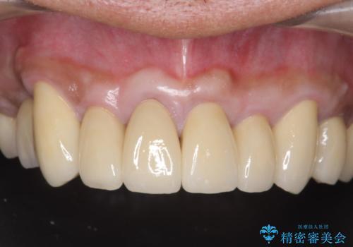 多発した深い虫歯 歯周外科による歯肉改善セラミック補綴の治療後