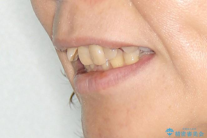 重度の不正咬合 Cl.Ⅱ div.2 を表のワイヤー矯正で綺麗に!の治療前(顔貌)