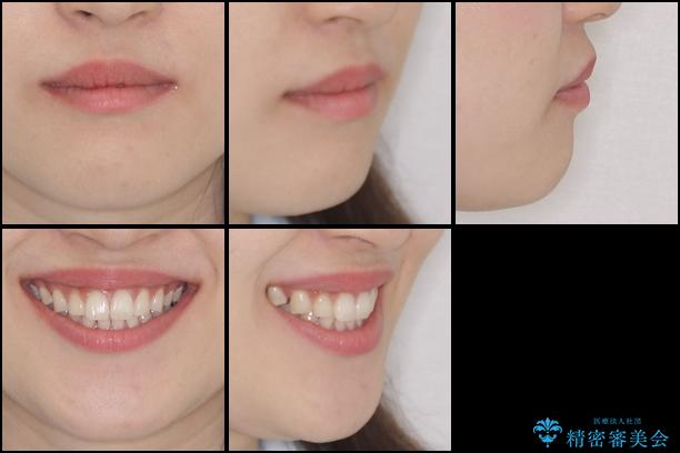 抜歯矯正の後戻りをインビザラインできれいにの治療前(顔貌)