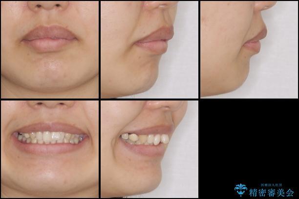上の前歯の出っ歯を抜歯矯正で改善の治療前(顔貌)