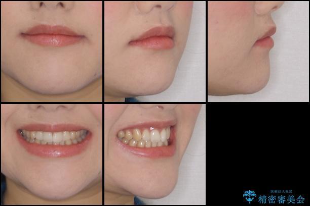 前歯のでこぼこを改善 インビザラインによる矯正治療の治療前(顔貌)
