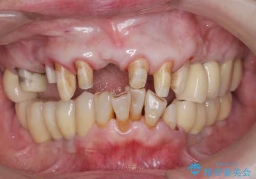セラミック下に再発した虫歯治療の治療中