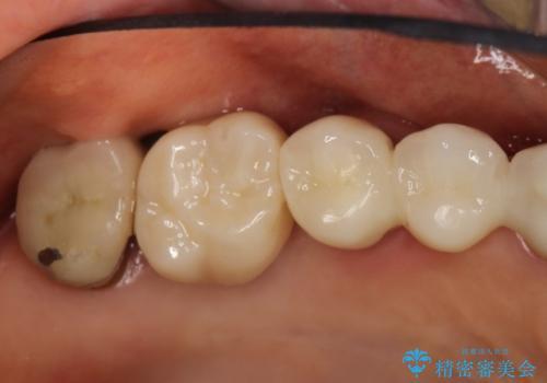 上の奥歯が保存不可能に→サイナスソケットリフトで薄い骨にも対応の症例 治療後