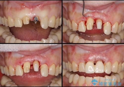 歯茎の腫れた前歯を綺麗にしたい 部分矯正を用いたセラミック治療の治療中