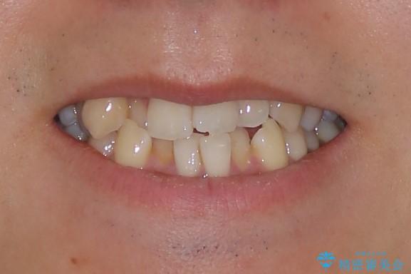 ハーフリンガルによるガタつきの矯正治療の治療前(顔貌)