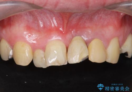[歯牙破折]  歯槽堤保存術を応用した上顎前歯ブリッジの治療前