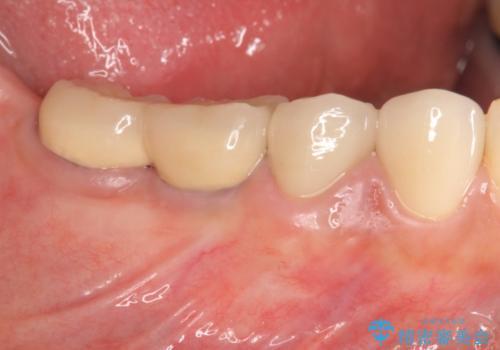 下顎大臼歯欠損 インプラントによる咬合機能回復の治療後