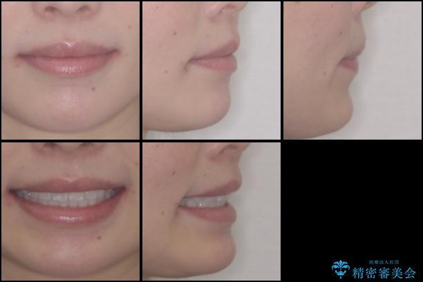 前歯の出っ歯とでこぼこを抜歯矯正で改善 目立たないワイヤー矯正の治療後(顔貌)