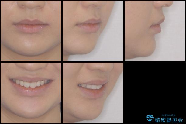 上の出っ歯を治したい インビザラインによる非抜歯矯正治療の治療後(顔貌)