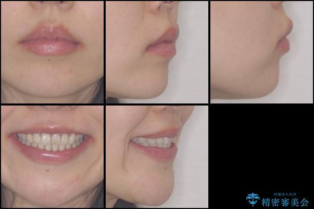 前歯の歯並びと変色を改善 インビザラインとオールセラミックの治療後(顔貌)
