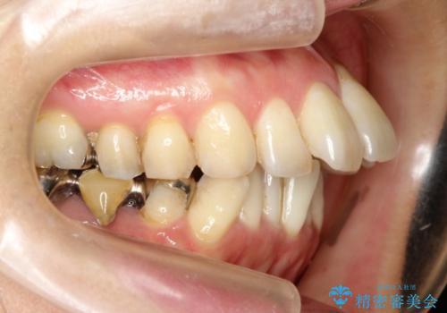 ハーフリンガル ワイヤー矯正 出っ歯の矯正治療の治療前