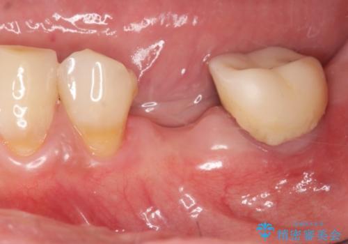 [歯の欠損] インプラントによる咬合回復の治療前