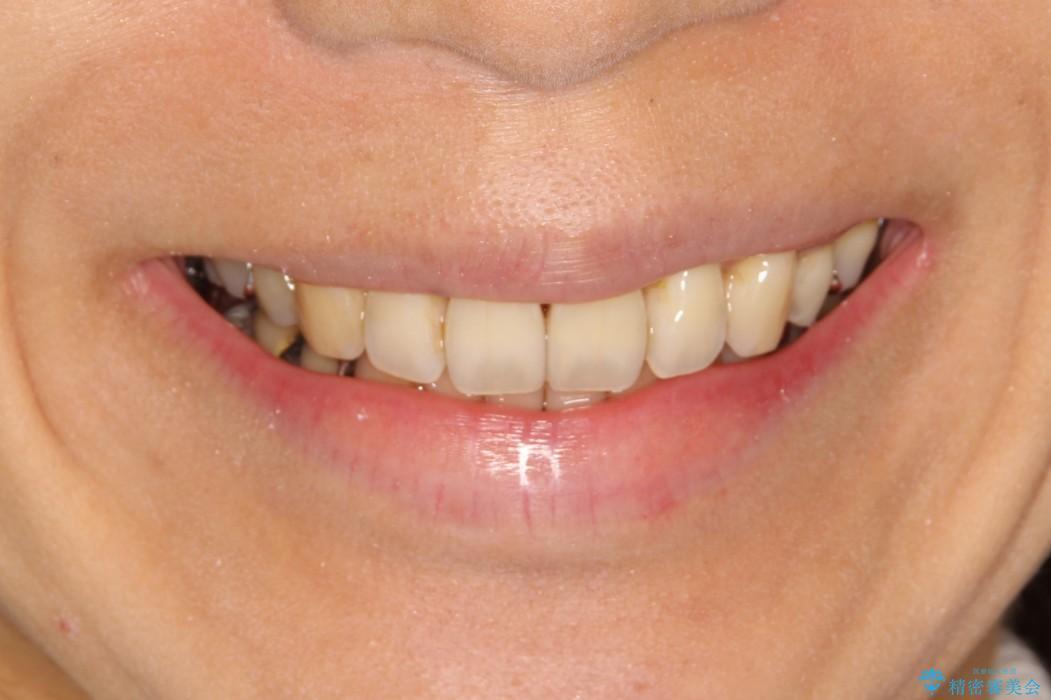 ハーフリンガル ワイヤー矯正 出っ歯の矯正治療の治療後(顔貌)