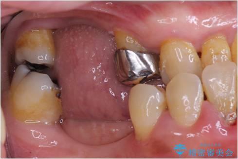 全顎歯周病治療の治療前