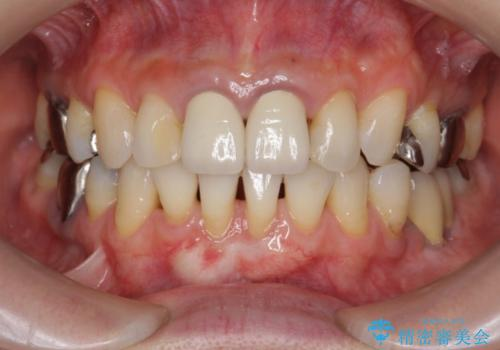 [前歯 オールセラミック治療]  前歯に天然歯のような透明感を創るの治療前