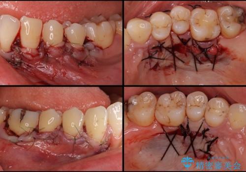 歯根の露出を隠したい 歯肉移植による根面被覆の治療中
