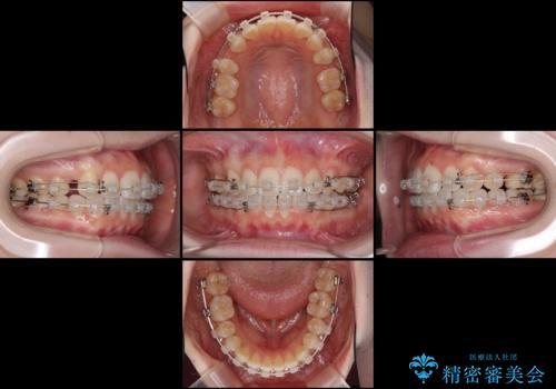 前歯の出っ歯とでこぼこを抜歯矯正で改善 目立たないワイヤー矯正の治療中